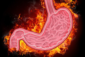 6 Fail-Proof Steps to Manage Acid Reflux